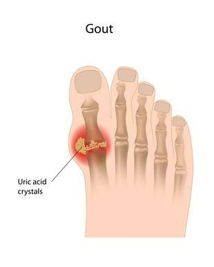 Mengubati Gout