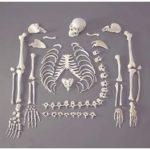 Hukum Menggunakan Tulang Manusia – Untuk Tujuan Belajar Ilmu Perubatan