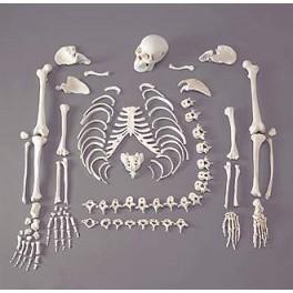 Hukum Menggunakan Tulang Manusia